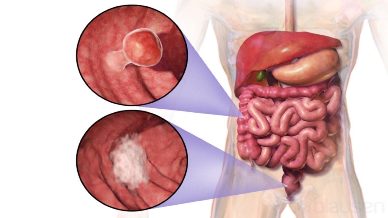 What You Can Do to Prevent Colon Cancer