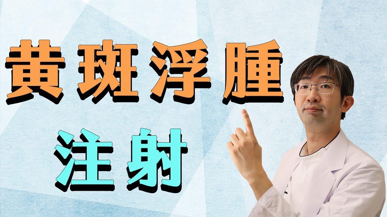 糖尿病は眼底出血などでおこる黃斑浮腫の治療 - YouTube