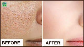 Витаминный крем для увлажнения кожи лица уход за лицом