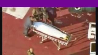 deutsch michael jackson autopsy report or a hoax teil 1