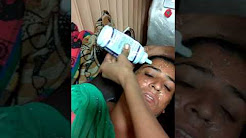 hqdefault - Acne Laser Treatment In Mumbai