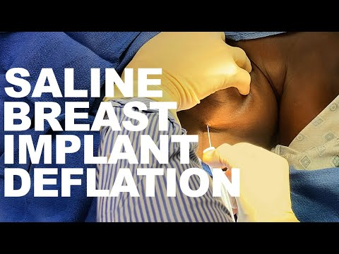 saline-breast-implant-deflation--dr.-paul-ruff-|-west-end-plastic-surgery