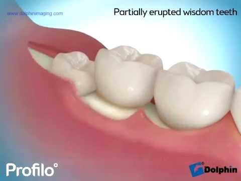Removing Impacted Wisdom Teeth