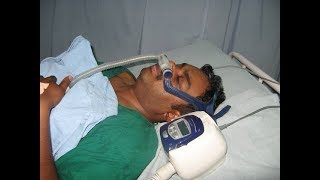 How to use CPAP Machine in Snoring and Sleep Apnea