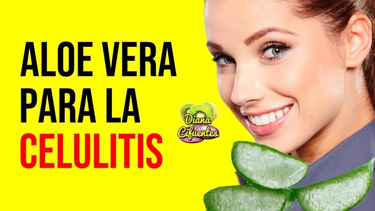 Aloe Vera Para La Celulitis Youtube