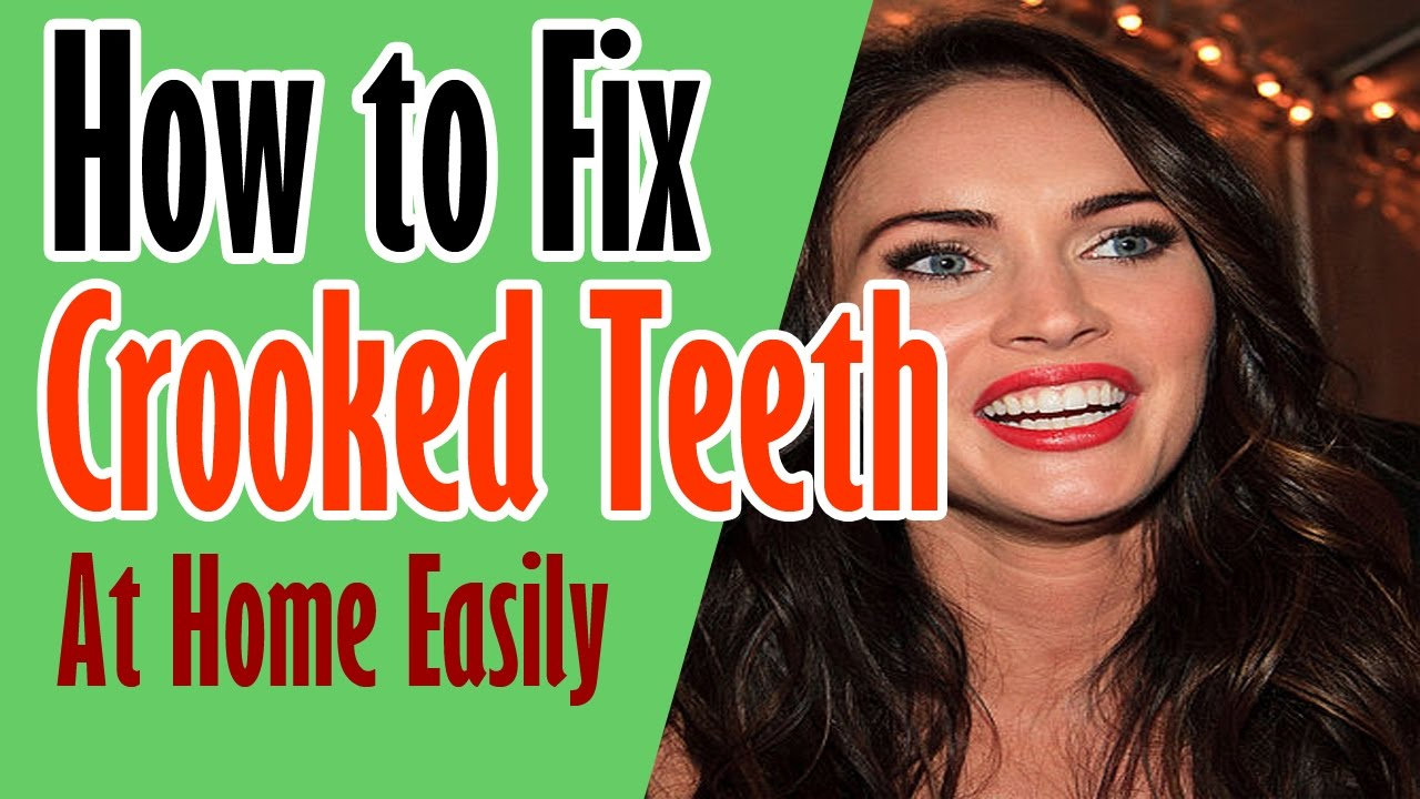 Get straight teeth at home - Fix Crooked Teeth How To Fix Crooked Teeth At Home Fix Crooked Teeth At Home