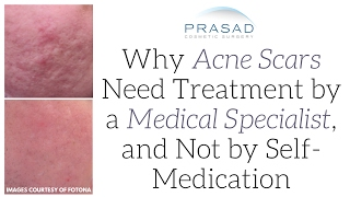 Why Acne Scars are a Problem Deep within the Skin that Needs Professional Medical Treatment   Amiya Prasad, M.D.