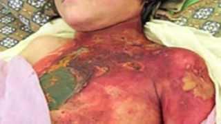 Repeat youtube video Niños quemados.m4v