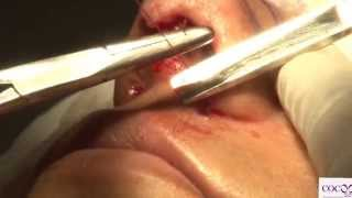Rhinoplasty / Nose Surgery - a demo Video by world renowned Plastic Surgeon Dr. Sanjay Parashar