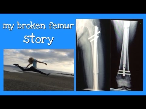 Fight song - Rachael platten - Broken femur recovery story - cover by 17 year old - Clare Newman