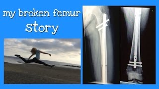 Fight song - Rachel platten - Broken femur recovery story - cover by 17 year old - Clare Newman