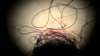 Morgellons Fibers Moving Transhumanism at the Door, NWO Taking Over