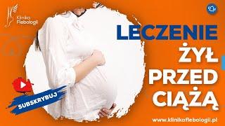 Leczenie żył przed ciążą - czy ma sens?