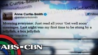 Anne Curtis tweets about jellyfish attack