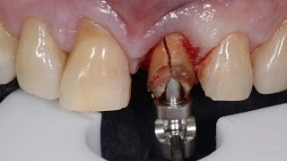 (18+) Atraumatic Tooth Extraction (ถอนฟันแบบไม่บาดเจ็บ)