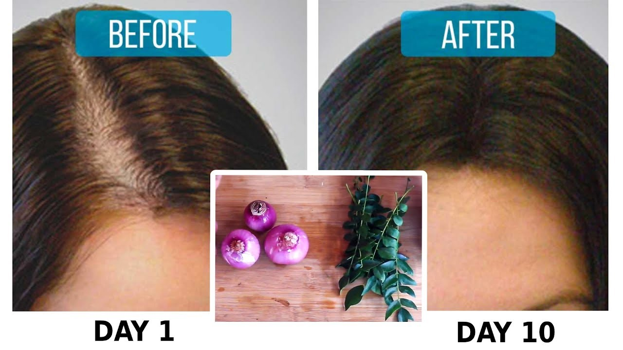 Try Onion + Curry Leaf for 1 Month & Turned Thin Hair to ...