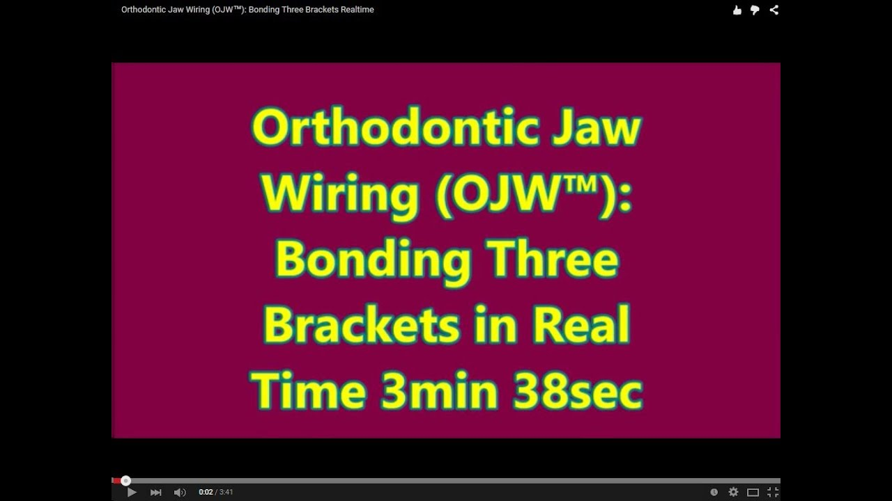 Orthodontic Jaw Wiring (OJW™) Bonding Three Brackets Realtime  sc 1 st  YouTube : wiring mouth shut to lose weight - yogabreezes.com