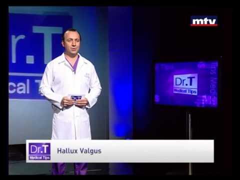 Hallux Valgus Beirut Lebanon -  Dr T Medical Tips