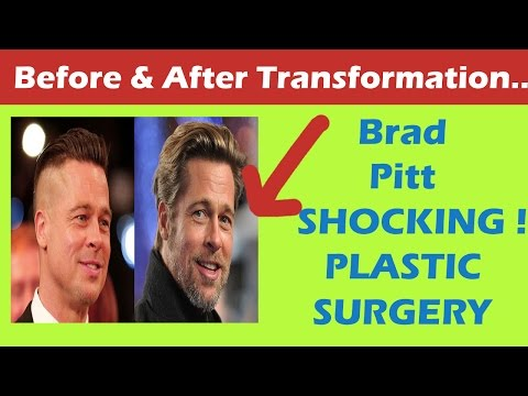 Brad Pitt Plastic Surgery Before and After - YouTube