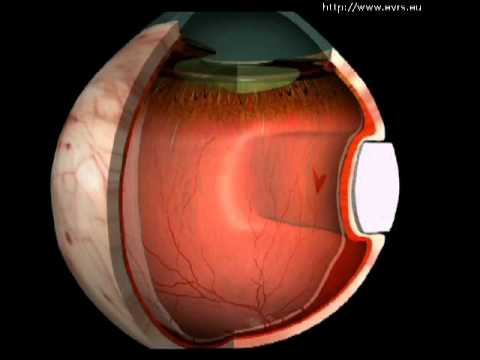 Retinal-Detachment - evrs