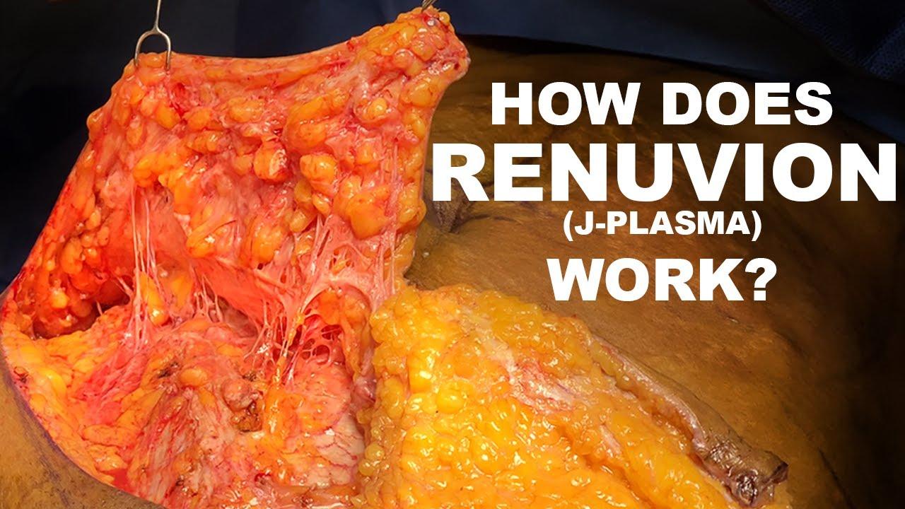How Does Renuvion (J-Plasma) Work? - Dr. Paul Ruff | West End Plastic Surgery