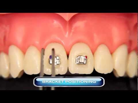Fixation of Brackets with Natural Ortho resin