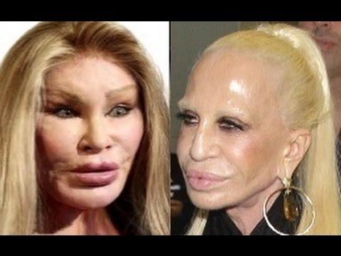 Ким Кардашян пластические операции, фото до и после