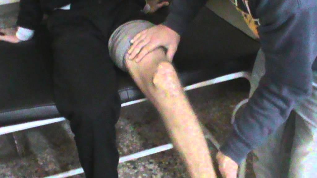8315e14957ca2 تكلس مفصل ركبة نتييجة كسر متفتت بالداغصة.MPG - YouTube