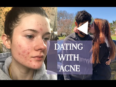 DATING WITH ACNE! My story & my biggest tip thumbnail