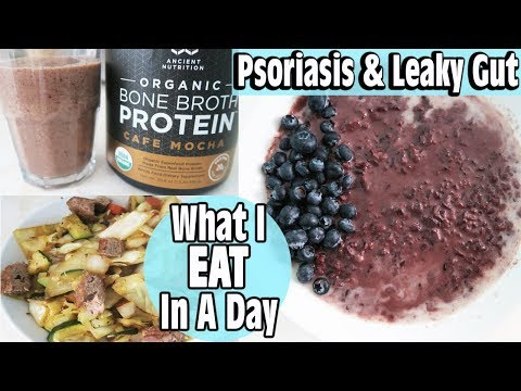 what-i-eat-in-a-day-|-healed-psoriasis-&-leaky-gut