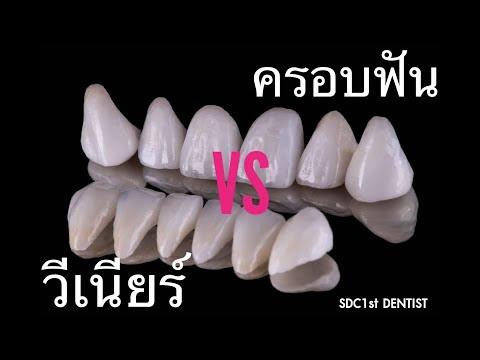 ครอบฟัน วีเนียร์ เคลือบฟัน ดารา