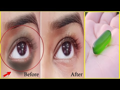 Apply Vaseline On Your Under Eye Dark Circles And See The Magic | Remove Dark Circles In Just 3 Days