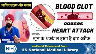 How BLOOD CLOT causes HEART ATTACK & its Warning Signs | Dr.Education (Hin + Eng Sub)