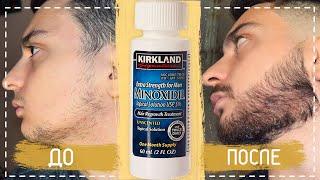 Как отрастить бороду, если не растет борода? |  Миноксидил отзыв