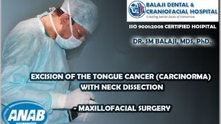 Excision of the tongue cancer (Carcinoma) with Neck Dissection-Maxillofacial Surgery-Dr. SM Balaji