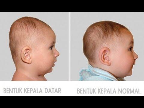 PENYEBAB NYERI PERUT SAAT HAMIL - TANYAKAN DOKTER - dr.Jeffry Kristiawan.