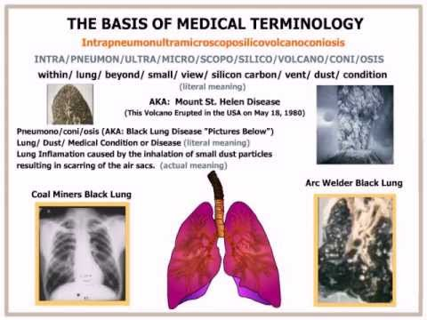 what is black lung disease The simple form of black lung disease, or coal miner's pneumoconiosis, usually exhibits no symptoms however, people with black lung disease who suffe.