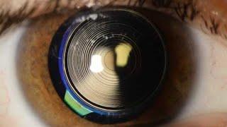 Multifokallinsen Implantat : wie funktionieren Multifokallinsen?