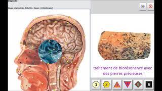 Metatron Hunter lithothérapie
