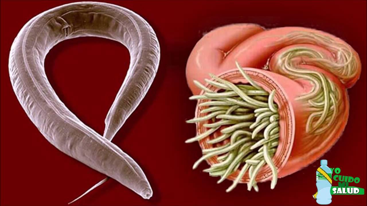Maneras naturales de eliminar los par sitos o lombrices for Gusanos blancos en la cocina