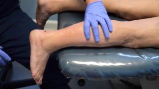 Achiles Tendon Lengthening By MIS