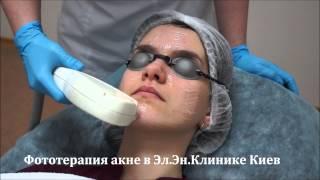 видео Диагностика, лечение и профилактика угревой сыпи на лице