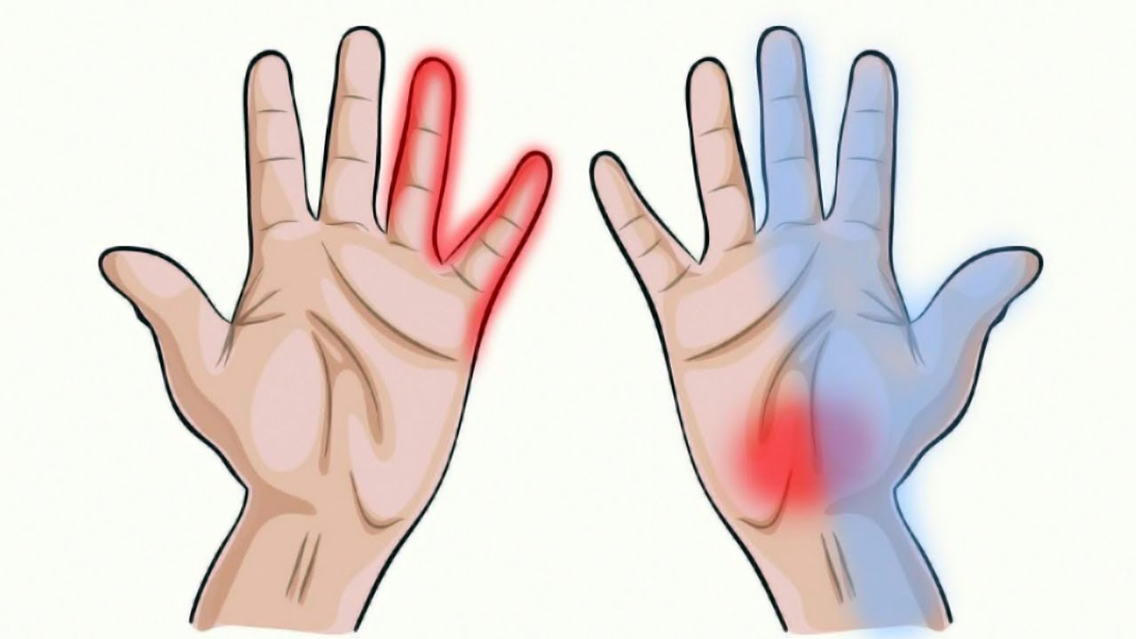 7 Things Your Hands Can Tell You About Your Health