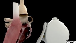 First Artificial Human Heart Transplant Performed In France