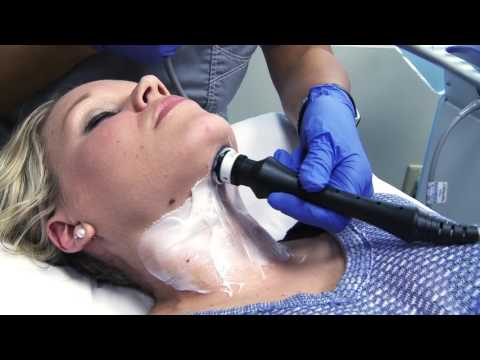 ThermiBody 250 Skin Tightening and Cellulite Reduction