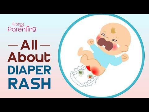 Diaper Rash In Babies –  Symptoms, Causes And Remedies