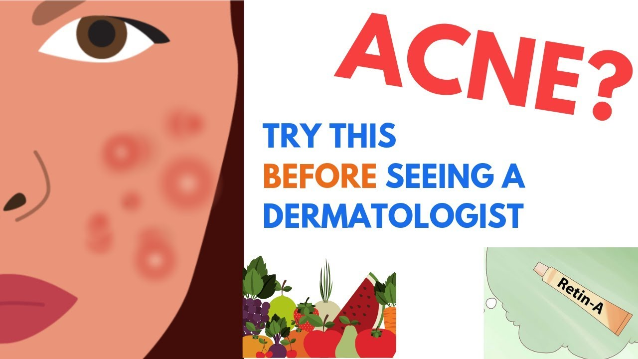 ACNE Treatments   Explained by Dermatologist