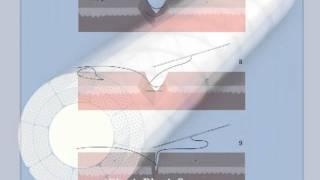 2) Revisione di cicatrice  senza scollamento con la sutura elastica e l'ago a due punte