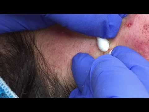 Blackhead Extractions on Leslie