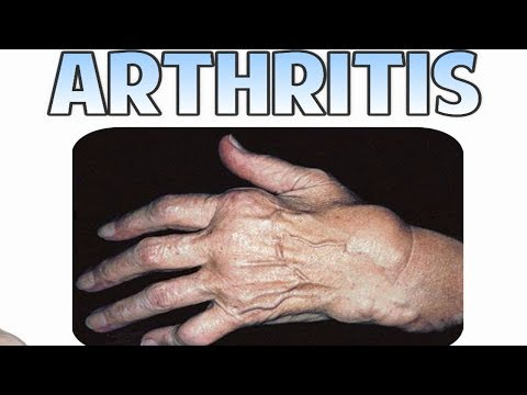 arthritis---treatment,-causes-and-facts